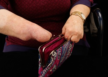 Cindy's two hands can open a kiss-clasp purse, even with limited fine motor ability.