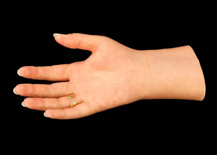 Palm side of right cosmetic hand, with gold ring visible.
