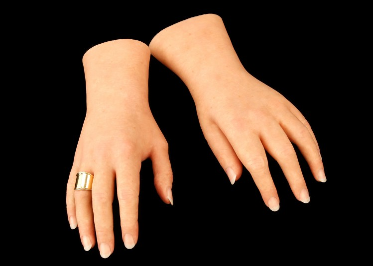 Top side (also called dorsal side) of the left and right cosmetic hands, with a gold ring on the right ring finger.
