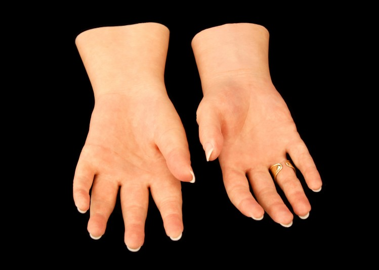 Palm side of the left and right cosmetic hands, with a gold ring on the right ring finger.