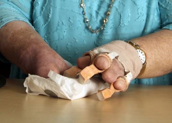 A close up of Cindy using the 3D printed fingers to wrap a gift, in white tissue paper. The fingers are attached to her hand via a woven elastic bandage on her wrists. The tips of three of Cindy's residual fingers are poking through the finger holes, and the tiny crystal decorative element is visible on each digit. The white food-grade silicone, enabling some flexibility and grip,  fills the ends of each digit.