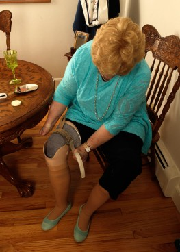 Cindy sits and attaches the upper leg to the lower prosthetic leg.