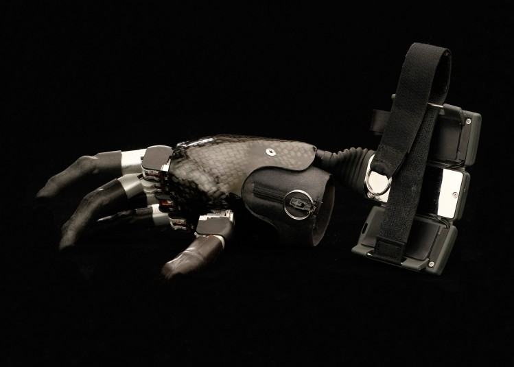 Cindy's black and silver, metal-and-chrome myoelectric hand, a fully prosthetic biomimetic hand with motorized fingers for gripping. The hand zips onto the residual arm and straps into place on the forearm with a large three-part buckle.