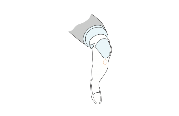 A technical drawing of Cindy's lower leg, with a circle showing the placement of the sponge for maximal cushioning.